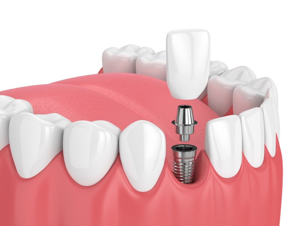 Illustration showing a bottom row of teeth with a dental implant being installed