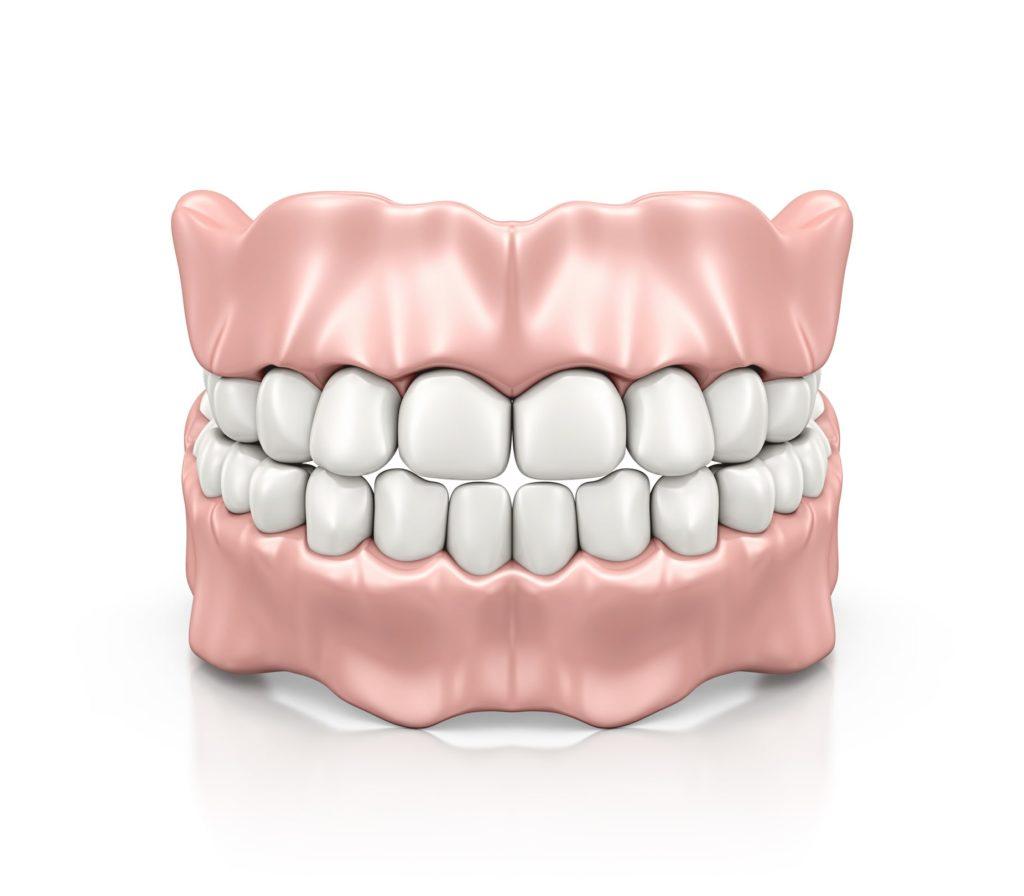 Illustration of a full set of dentures