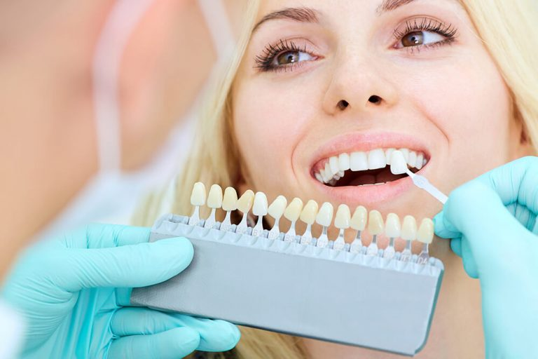 dentist holds a tray of teeth with varying degrees of dark to bright colored teeth near a patient's teeth